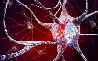 image depicting neurons affected by Parkinson's Disease